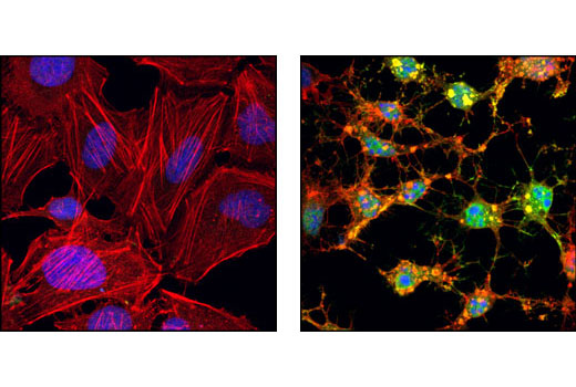 Confocal immunofluorescent analysis of HeLa cells, untreated (left) or staurosporine-treated (right), using Cleaved Caspase-3 (Asp175) Antibody (Alexa Fluor<sup>®</sup> 488 Conjugate) (green). Actin filaments have been labeled with Alexa Fluor<sup>®</sup> 555 phalloidin #8953 (red). Blue pseudocolor = DRAQ5<sup>®</sup> (fluorescent DNA dye).