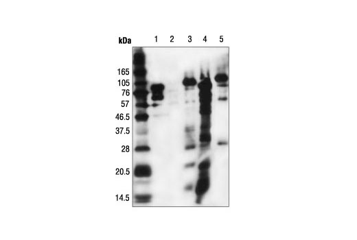 Western blot analysis of extracts from NIH/3T3 cells, untreated (lane 2) or treated in vitro with CPB (lane 3) or PCAF (lane 4), using Acetylated-Lysine Mouse mAb (Ac-K-103). (Lanes 1 and 5: PCAF and CBP, respectively, showing auto acetylation.