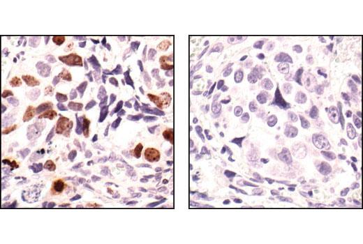 Immunohistochemical analysis of paraffin-embedded human colon carcinoma, untreated (left) or lambda phosphatase-treated (right), using Phospho-Histone H3 (Ser10) Antibody.