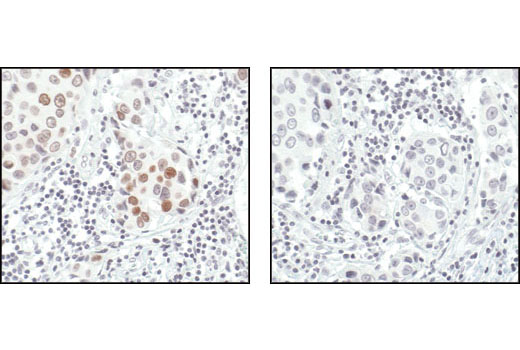 Immunohistochemical analysis of paraffin-embedded human breast carcinoma, using Phospho-Histone H2A.X (Ser139) (20E3) Rabbit mAb in the presence of control peptide (left) or Phospho-Histone H2A.X (Ser139) Blocking Peptide #1260 (right).