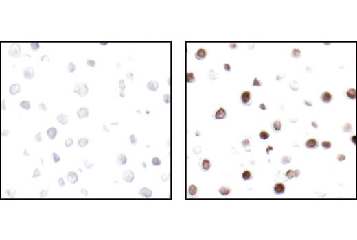 Immunohistochemical analysis of paraffin-embedded HT-29 cells untreated (left) or UV-treated (right), using Phospho-Histone H2A.X (Ser139) (20E3) Rabbit mAb.