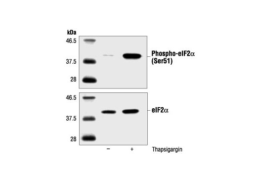 Polyclonal Antibody Western Blotting Translation Initiation Factor Activity