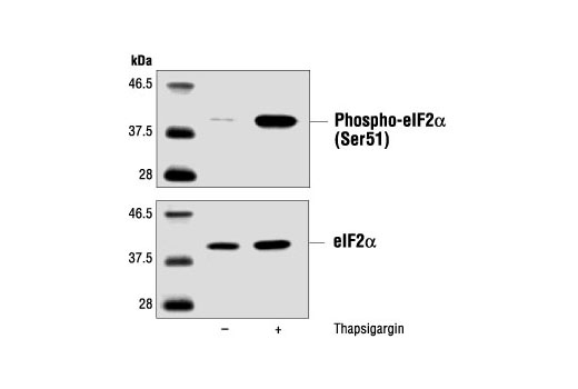 Western blot analysis of extracts from PC12 cells, untreated or thapsigargin-treated (300 nM) using Phospho-eIF2α (Ser51) Antibody #9721 (upper) and control eIF2α Antibody (lower).