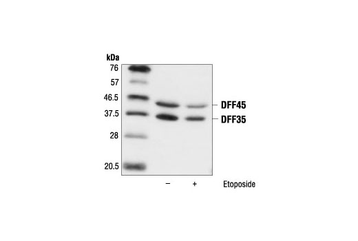 Western blot analysis of Jurkat cells, untreated (control) or etoposide-treated (25 µM), using DFF45/DFF35 Antibody.