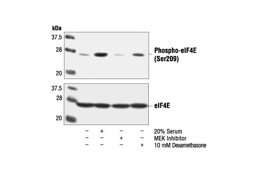 Western blot analysis of extracts from NIH/3T3 cells, untreated or treated with serum, PD98059 or Dexamethasone, using Phospho-eIF4E (Ser209) Antibody (upper) or eIF4E Antibody #9742 (lower).