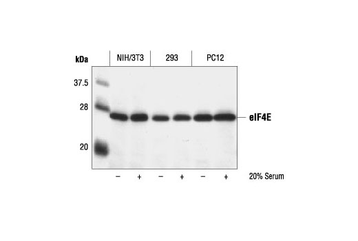 Western blot analysis of extracts from control and serum treated NIH/3T3, 293 or PC12 cells, using eIF4E Antibody.