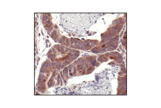 Immunohistochemical analysis of paraffin-embedded human renal cell carcinoma, using eIF4E Antibody.