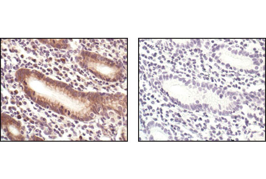 Immunohistochemical analysis of paraffin-embedded human colon, using eIF4E Antibody in the presence of control peptide (left) or antigen-specific peptide (right).