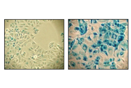 Assay Kit - Senescence β-Galactosidase Staining Kit, UniProt ID P00722, Entrez ID 945006 #9860, Cell Cycle / Checkpoint