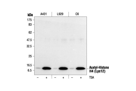 Western blot analysis of extracts from various cell lines, untreated or TSA-treated (400 nM TSA for 12 hours), using Acetyl-Histone H4 (Lys12) Antibody #2591.