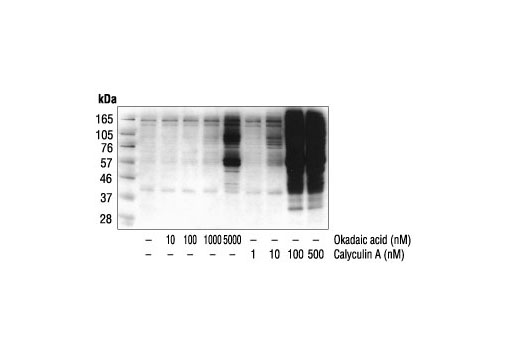 Western blot analysis of extracts from A431 cells treated with varied concentrations of Okadaic Acid or Calyculin A (30 minutes) using P-Thr-Polyclonal #9381.