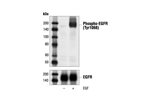 Image 1: Epidermal Growth Factor (Human EGF)