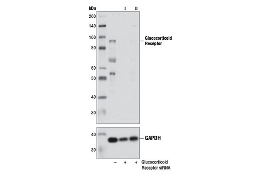 siRNA Transfection Glucocorticoid Receptor - count 2