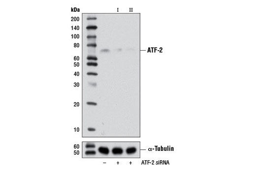 Western blot analysis of extracts from ACHN cells, transfected with 100 nM SignalSilence<sup>®</sup> Control siRNA (Unconjugated) #6568 (-), SignalSilence<sup>®</sup> ATF-2 siRNA I #6433 (+) or SignalSilence<sup>®</sup> ATF-2 siRNA II (+), using ATF-2 (20F1) Rabbit mAb #9226 (upper) or α-Tubulin (11H10) Rabbit mAb #2125 (lower). The ATF-2 (20F1) Rabbit mAb confirms silencing of ATF-2 expression, while the α-Tubulin (11H10) Rabbit mAb is used as a loading control.
