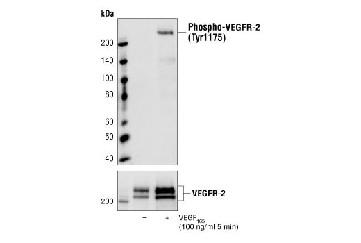 Image 1: Vascular Endothelial Growth Factor (VEGF)