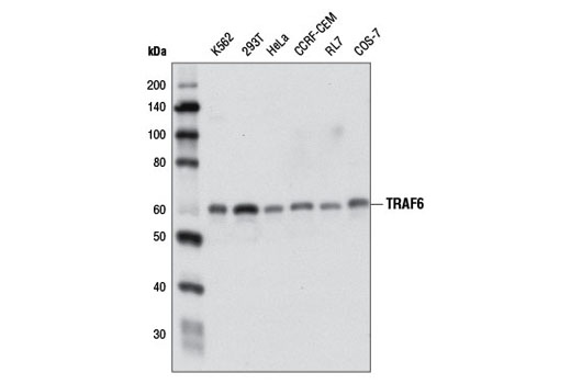 Western blot analysis of extracts from various cell lines using TRAF6 (D21G3) Rabbit mAb.