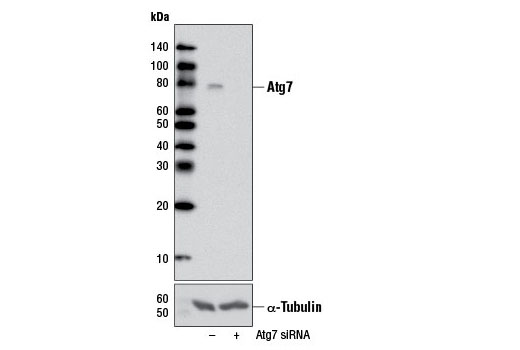 Western blot analysis of extracts from HeLa cells, transfected with 100 nM SignalSilence<sup>®</sup> Control siRNA (Unconjugated) #6568 (-) or SignalSilence<sup>®</sup> Atg7 siRNA I #6604 (+), using Atg7 (D12B11) Rabbit mAb (upper) or α-Tubulin (11Η10) Rabbit mAb #2125 (lower). The Atg7 (D12B11) Rabbit mAb confirms silencing of Atg7 expression, while the α-Tubulin (11H10) Rabbit mAb is used as a loading control.
