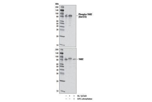 Monoclonal Antibody - Phospho-TAB2 (Ser372) (D5A4) Rabbit mAb, UniProt ID Q9NYJ8, Entrez ID 23118 #8155, Tab2