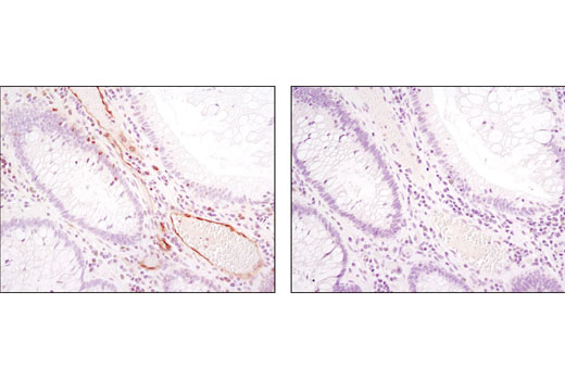 Immunohistochemical analysis of paraffin-embedded human colon (normal adjacent to tumor) using Phospho-PLCγ1 (Ser1248) (D25A9) Rabbit mAb in the presence of control peptide (left) or antigen-specific peptide (right).