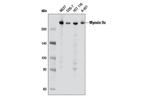 Western blot analysis of extracts from various cell lines using Myosin IIc (D4A7) Rabbit mAb.