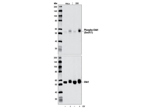 Western blot analysis of extracts from HeLa or 293 cells, untreated (-) or treated with UV (100 mJ) (+), using Phospho-Chk1 (Ser317) (D7H2) Rabbit mAb (upper) or Chk1 (2G1D5) Mouse mAb #2360 (lower).