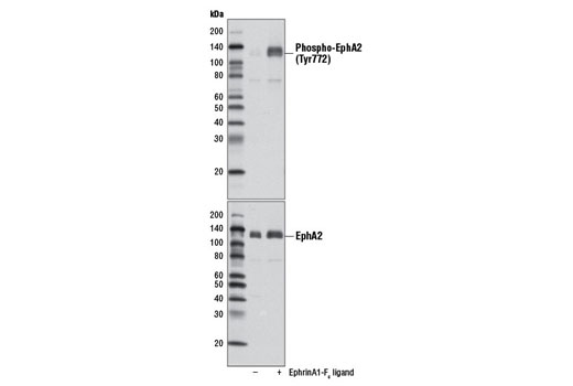 Polyclonal Antibody Immunoprecipitation Ephrin Receptor Activity