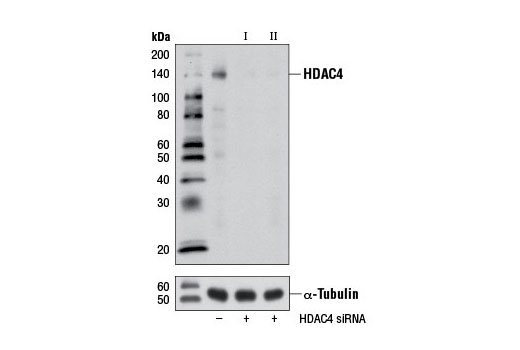 Western blot analysis of extracts from HeLa cells, transfected with 100 nM SignalSilence<sup>®</sup> Control siRNA (Unconjugated) #6568 (-), SignalSilence<sup>®</sup> HDAC4 siRNA I (+) or SignalSilence<sup>®</sup> HDAC4 siRNA II #7609 (+), using HDAC4 (D15C3) Rabbit mAb #7628 (upper) or α-Tubulin (11H10) Rabbit mAb #2125 (lower). The HDAC4 (D15C3) Rabbit mAb confirms silencing of HDAC4 expression, while the α-Tubulin (11H10) Rabbit mAb is used as a loading control.