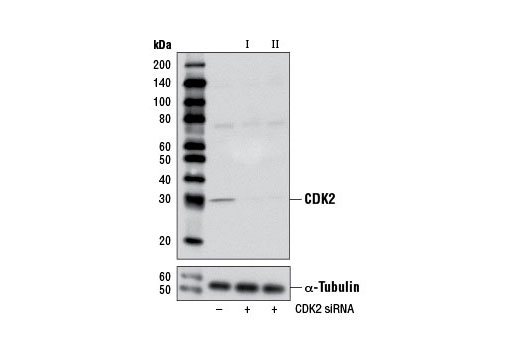 Western blot analysis of extracts from HeLa cells, transfected with 100 nM SignalSilence<sup>®</sup> Control siRNA (Unconjugated) #6568 (-), SignalSilence<sup>®</sup> CDK2 siRNA I (+) or SignalSilence<sup>®</sup> CDK2 siRNA II #7417 (+), using CDK2 (78B2) Rabbit mAb #2546 (upper) or α-Tubulin (11H10) Rabbit mAb #2125 (lower). The CDK2 (78B2) Rabbit mAb confirms silencing of CDK2 expression, while the α-Tubulin (11H10) Rabbit mAb is used as a loading control.