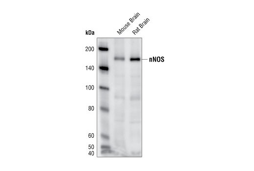 Western blot analysis of extracts from mouse and rat brain, using nNOS Antibody.