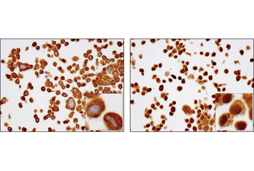 Immunohistochemistry Image 1: NF-κB p65 (D14E12) XP® Rabbit mAb