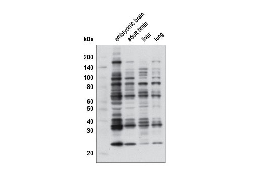 Western blot analysis of extracts from various mouse tissues using Mono-Methyl Arginine (R*GG) (D5A12) Rabbit mAb.