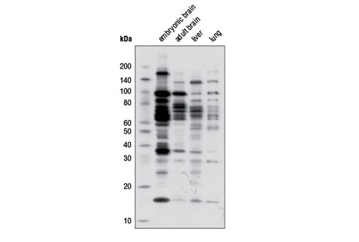 Western Blotting Image 1: Mono-Methyl Arginine [mme-R] MultiMab™ Rabbit mAb mix