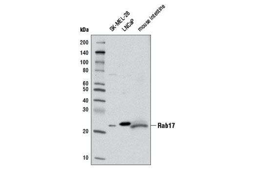 Monoclonal Antibody Immunoprecipitation Melanosome Transport - count 11