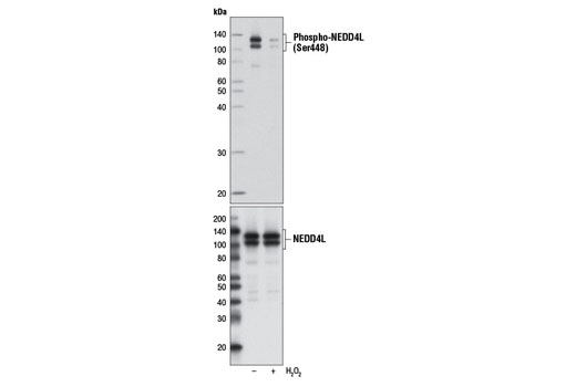 Polyclonal Antibody - Phospho-NEDD4L (Ser448) Antibody - Immunoprecipitation, Western Blotting, UniProt ID Q96PU5, Entrez ID 23327 #8063 - Ubiquitin and Ubiquitin-Like Proteins