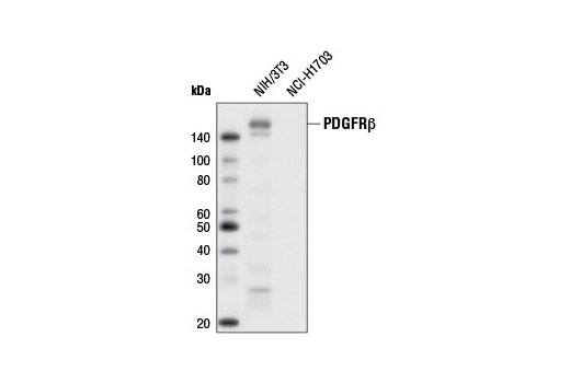 Western blot analysis of extracts from NIH/3T3 and NCI-H1703 cells using PDGF Receptor β (28E1) Rabbit mAb (Biotinylated).