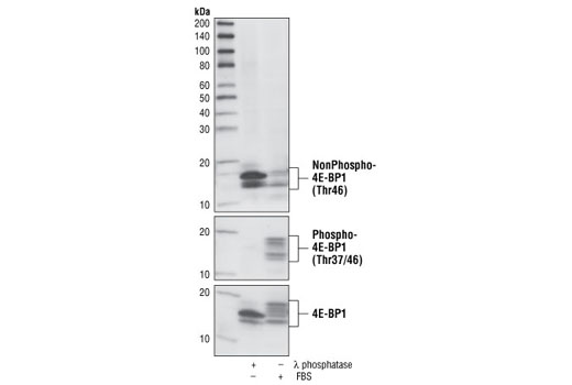 Western blot analysis of extracts from COS cells, treated with λ phosphatase or 20% FBS as indicated, using Non-phospho-4E-BP1 (Thr46) (87D12) Rabbit mAb (upper), Phospho-4E-BP1 (Thr37/46) Antibody #9459 (middle), and 4E-BP1 Antibody #9452 (lower).