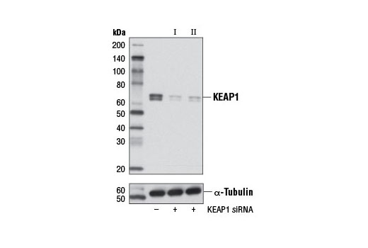 Western blot analysis of extracts from OVCAR8 cells, transfected with 100 nM SignalSilence<sup>®</sup> Control siRNA (Unconjugated) #6568 (-), SignalSilence<sup>® </sup>KEAP1 siRNA I #5285 (+) or SignalSilence<sup>®</sup> KEAP1 siRNA II #5289 (+), using KEAP1 (D6B12) Rabbit mAb (upper) or α-Tubulin (11H10) Rabbit mAb #2125 (lower). The KEAP1 (D6B12) Rabbit mAb confirms silencing of KEAP1 expression, while the α-Tubulin (11H10) Rabbit mAb is used as a loading control.