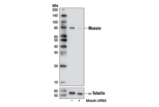 siRNA Transfection Leukocyte Adhesion