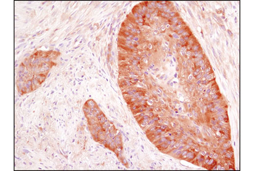Immunohistochemical analysis of paraffin-embedded human colon carcinoma using HDAC6 (D2E5) Rabbit mAb.