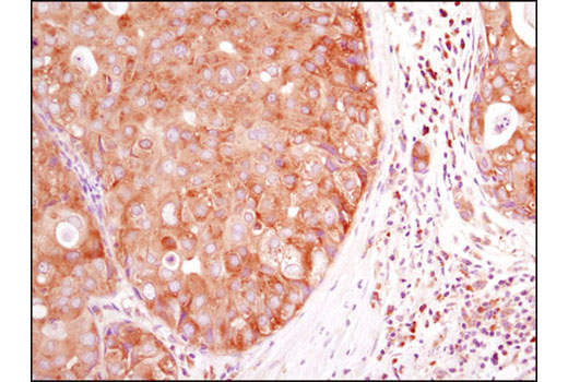 Immunohistochemical analysis of paraffin-embedded human breast carcinoma using HDAC6 (D2E5) Rabbit mAb.