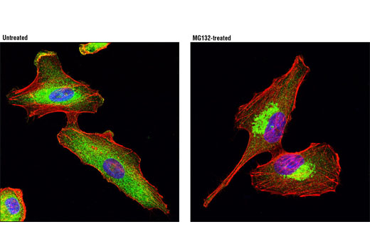 Confocal immunofluorescent analysis of A549 cells, untreated (left) or treated with MG132 (5 μM, 24 hr; right), using HDAC6 (D2E5) Rabbit mAb (green). Actin filaments were labeled with DY-554 phalloidin (red). Blue pseudocolor = DRAQ5<sup>®</sup>#4084 (fluorescent DNA dye).