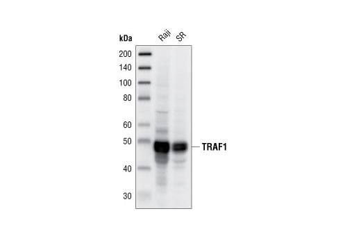 Western blot analysis of extracts from Raji and SR cells, using TRAF1 (45D3) Rabbit mAb.