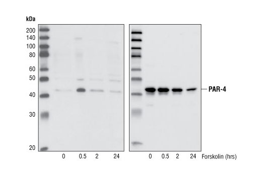 Western blot analysis of extracts from HeLa cells, untreated or forskolin-treated (30 μM), using Phospho-PAR-4 (Thr163) Antibody (upper) or total PAR-4 Antibody #2328 (lower).