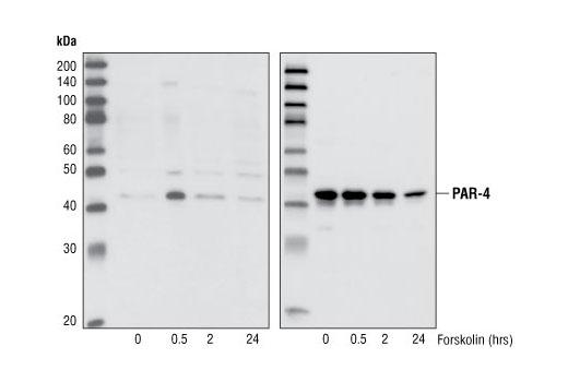 Polyclonal Antibody - Phospho-PAR-4 (Thr163) Antibody - Western Blotting, UniProt ID Q96IZ0, Entrez ID 5074 #2329