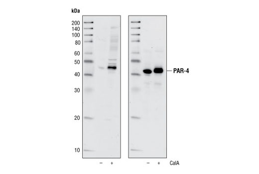 Western blot analysis of extracts from HeLa cells, untreated or treated with Calyculin A (100 nM, 5 minutes), using Phospho-PAR-4 (Thr163) Antibody (upper) or total PAR-4 Antibody #2328 (lower).