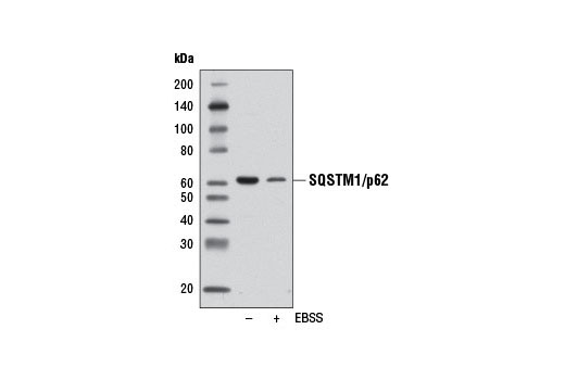 Western blot analysis of extracts from SK-MEL-2 cells, untreated (-) or starved overnight in Earle's Balanced Salt Solution (EBSS) (+), using SQSTM1/p62 (D5E2) Rabbit mAb.