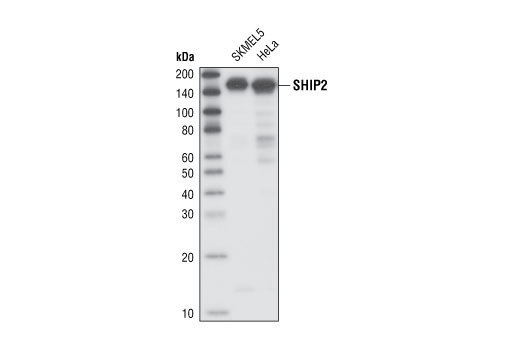 Western blot analysis of total cell lysates from SKMEL5 and HeLa cells, using SHIP2 Antibody.