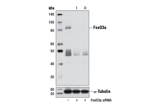 SignalSilence® FoxO3a siRNA I (Mouse Specific) - Transfection, UniProt ID Q9WVH4, Entrez ID 56484 #8620