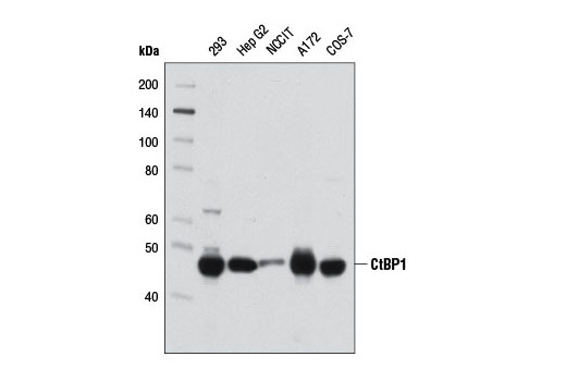 Antibody Sampler Kit Lymph Node Development