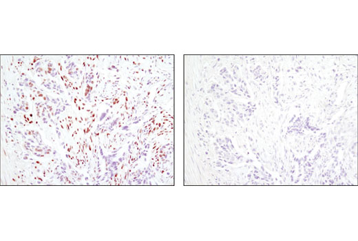 Immunohistochemical analysis of paraffin-embedded human colon carcinoma using CtBP1 (D2D6) Rabbit mAb in the presence of control peptide (left) or antigen-specific peptide (right).